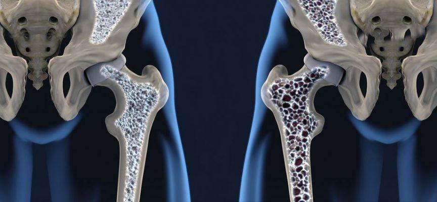 PILATES Y OSTEOPOROSIS